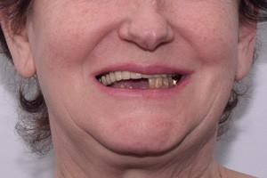 Новые зубы за 3 дня. Basal Complex на обе челюсти, фото до