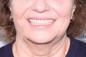 Базальная имплантация для восстановления зубов на обе челюсти, фото до