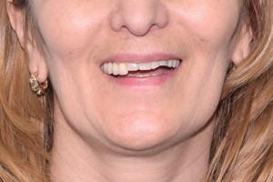 Базальная имплантация и новая улыбка, фото до