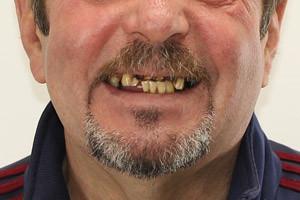 Новые зубы на 3й день, фото до