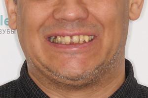 Всего 3 дня и новые зубы, фото до