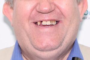 Замена зубов в кратчайшие сроки, фото до