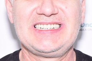 Новые зубы на имплантах Biomed, фото до