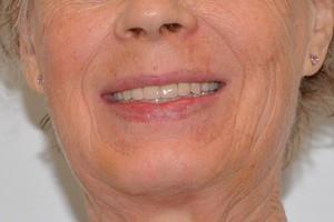 Новые зубы для пациентки из Иркутской области, фото до