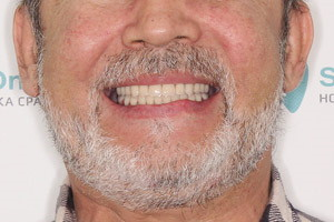 Восстановление зубов по протоколу BasalComplex, фото до