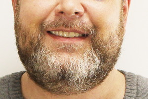 Новые возможности с новыми зубами, фото до