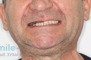 Базальные комплексы на обе челюсти, фото до