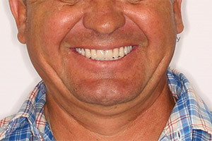 Восстановление зубов обеих челюстей имплантацией