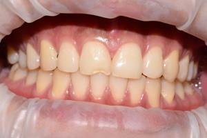 Реставрация переднего зуба и отбеливание всех зубов, фото до