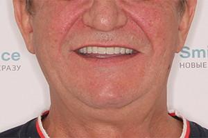Имплантация двух челюстей