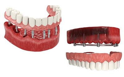Базальная имплантация на 2 челюсти