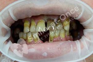 Восстановление зубов с помощью базальной имплантации