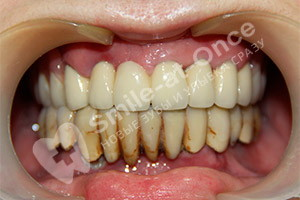 Базальная имплантация нижней челюсти