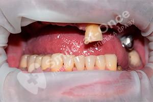 Базальная имплантация зубов верхней челюсти