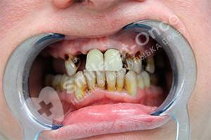 Базальная импланация верхней челюсти