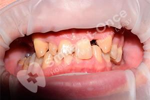 Базальная имплантация верхней челюсти