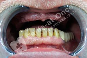 Базальная имплантация двух челюстей