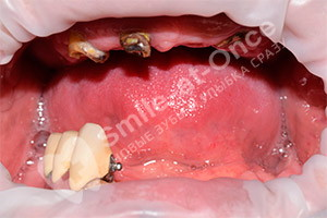 Базальная имплантация обеих челюстей