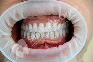 Восстановление зубов при помощи базальной имплантации