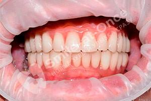 Базальная имплантация зубов на обеих челюстях