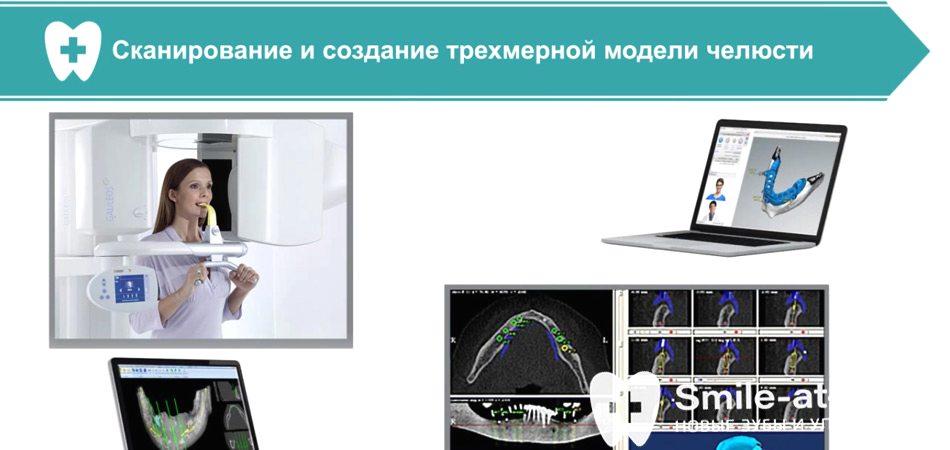 Видео о базальной имплантации всех зубов за 3 дня
