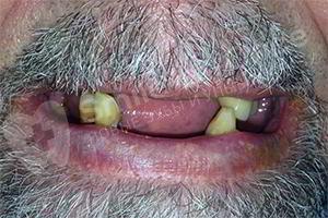 Имплантация и протезирование за 3 дня 2-х челюстей- SMILE-AT-ONCE