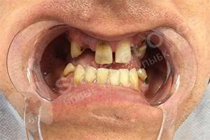 Имплантация и протезирование верхней и нижней челюсти за 4 дня