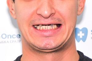 All-on-4 для верхней челюсти, фото до