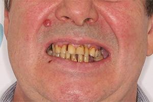 Немедленная имплантация - 2 челюсти