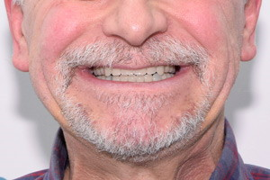 All-on-6 для нижней челюсти, фото до