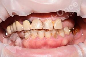 Имплантация на верхней челюсти и частичные протезы на нижней