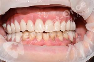 Имплантация на верхней челюсти и частичные протезы нижней