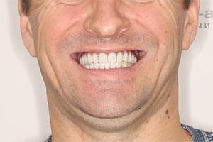 Новые зубы верхней челюсти за 3 дня
