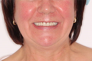 Имплантация при отсутствии зубов верхней челюсти