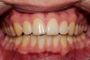 Исправление прикуса брекетами на нижней челюсти, фото до
