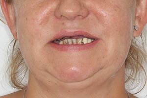 All-on-4 для восстановления верхней и нижней челюсти - до