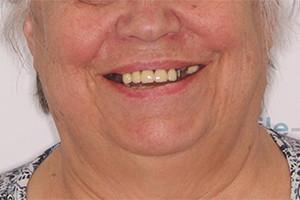 Имплантация зубов после зубного моста