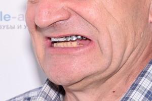 BASAL COMPLEX FULL на замену старым коронкам и проблемным зубам - до