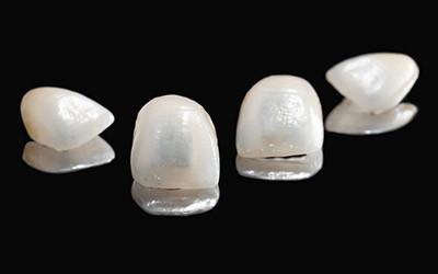 Винир керамический Emax