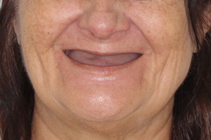All-on-4 на 4х имплантах Zygoma, фото до
