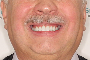 Комплексная имплантация двух челюстей