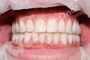 Имплантация для восстановления зубов после пародонтоза
