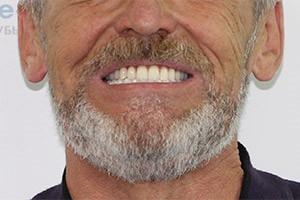 Комбинация методов имплантации для восстановления зубов