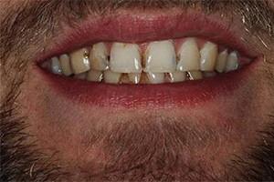 Исправление эстетики передних зубов