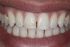 Циркониевые виниры на передние зубы
