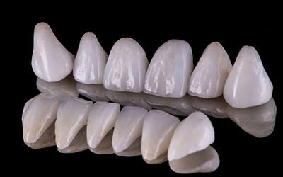 Зубная коронка из диоксида циркония CAD/CAM