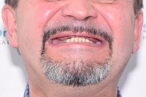 All-on-4 с двумя имплантами Zygoma для верхней челюсти, фото до