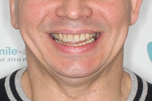Trefoil или Все-на-3 для нижней челюсти - до