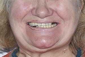 Восстановление зубов All-on-6 и All-on-4
