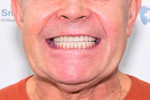 All-on-6 для восстановления зубов на обеих челюстях, фото до